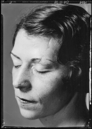 Mrs. T.C. Murphy to show scars on face, Southern California, 1934