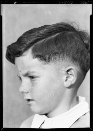Boy's scar, Southern California, 1934
