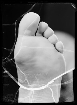 Foot with & without athlete's foot, Southern California, 1935