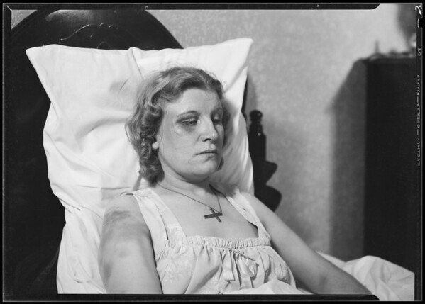 Gladys E. Payne showing bruises, Los Angeles, CA, 1940