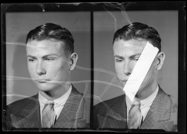 Scars on face of L. D. Millburn, Southern California, 1940