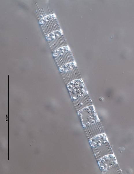Skeletonema tropicum. Golfo de Nicoya, Costa Rica. Julio-Agosto de 2011. Muestra fijada (formol)