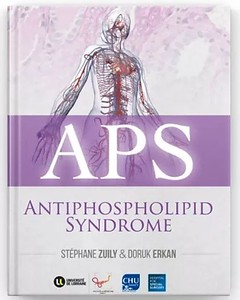 APS ACTION, APS Foundation of America, Inc., APS Support UK - for people with antiphospholipid syndrome and APS Foundation of Australia jointly support World Thrombosis Day. We want to increase APS awareness in the #thrombosis community. Physicians can download the free #APS iBook (also available in French) at: https://apple.co/2NIyMyO #WTDay19