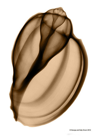 Xray photo of Ventral Harp Shell, Harpa ventricosa. Family Harpidae