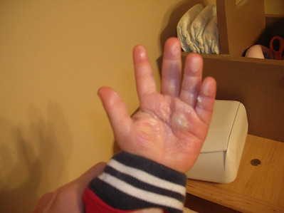 Lukas found the fireplace and earned a trip to the ER with 2nd degree burns all over his hand
