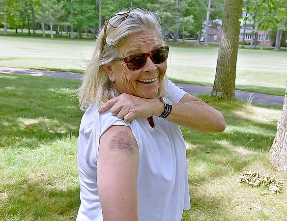 (Brad Davis/The Register-Herald) Volunteer spotter Marcy Nolan shows off the bruise left behind after being struck in the arm by a shot the previous day at the West Virginia Amateur Wednesday afternoon at Glade Springs, proving that even while perched off in the trees, the work of volunteers all over the course can be risky business.