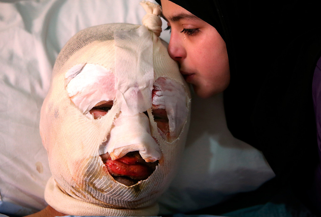 . Fatima, 13, weeps as she kisses her injured father, Ahmad al-Messmar, 40, who was wounded when a deadly car bomb blew up near a gas station, in the predominately Shiite town of Hermel, about 10 miles (16 kilometers) from the Syrian border in northeast Lebanon, Sunday, Feb. 2, 2014. A shadowy Lebanese Sunni extremist group claimed responsibility for a suicide car bombing in Hermel, a stronghold of Lebanon\'s militant Hezbollah group, that killed several people in the latest attack linked to the war in neighboring Syria. (AP Photo/Hussein Malla, File)