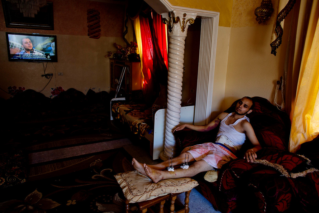 . In this photo made on Friday Aug. 8, 2014, Mohammed Abu Taha rests in his family home in Rafah, Gaza Strip. Mohammed was wounded in his leg, arm and torso when an Israeli missile targeted a motorcyclist in Rafah on Aug. 1, 2014. More than 9,000 Palestinians, the majority of them civilians and nearly a third among them children, have been wounded in the month long Gaza war. (AP Photo/Dusan Vranic)
