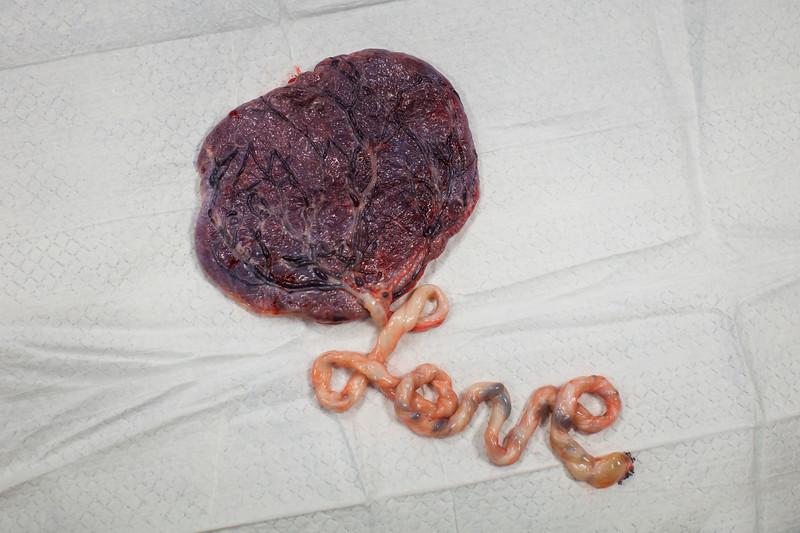 celine-placenta-HR-4.jpg