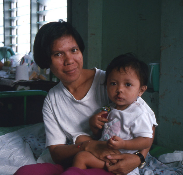 pampanga'94.mom with boy, cleft.jpg