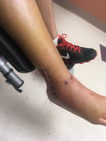 JC's Broken Leg
