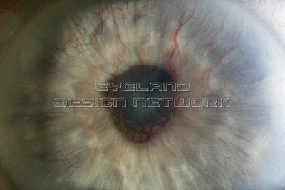 Secondary angle closure glaucoma - Rubeosis iridis