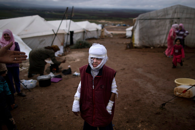 . Abdullah Ahmed, 10, who suffered burns in a Syrian government airstrike and fled his home with his family, stands outside their tent at a camp for displaced Syrians in the village of Atmeh, Syria, Tuesday, Dec. 11, 2012. This tent camp sheltering some of the hundreds of thousands of Syrians uprooted by the country\'s brutal civil war has lost the race against winter: the ground under white tents is soaked in mud, rain water seeps into thin mattresses and volunteer doctors routinely run out of medicine for coughing, runny-nosed children. (AP Photo/Muhammed Muheisen)