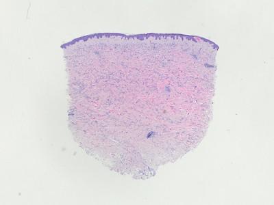 DP15-27353 Met gastric ca skin
