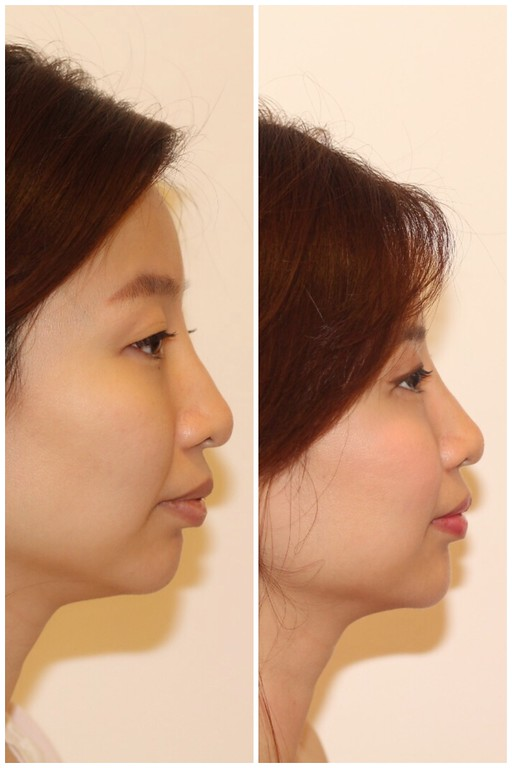 The Clifford Clinic Singapore, filler, botox, v shape