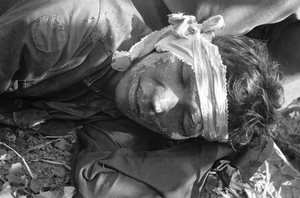 . The pains of war are etched in face of South Vietnamese soldier who was wounded, captured and later escaped during bitter fighting near U Minh Forest, 100 miles southwest of Saigon, Jan. 22, 1973. Troops were attempting to regain Viet Cong-controlled area when ambushed, resulting in more than 100 men killed. (AP Photo)