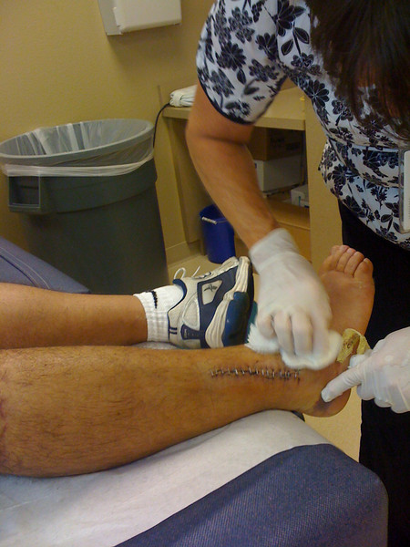 2009 07 13 - Outer ankle staples