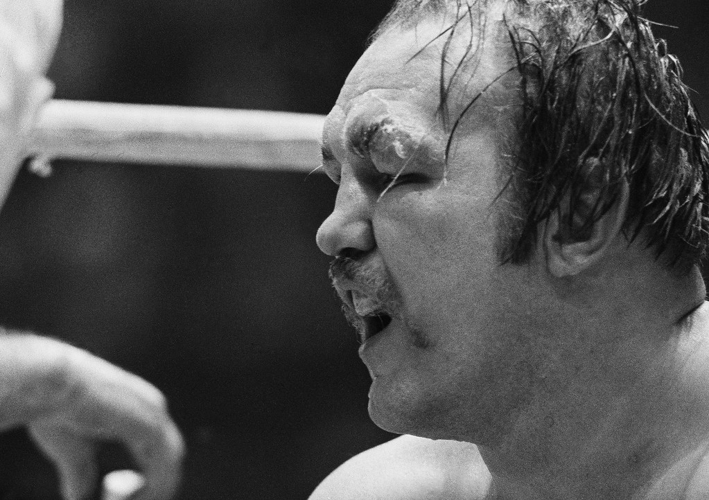. Chuck Wepner?s eye is puffed and cut as he gets ready to go into the last round of title bout with Muhammad Ali at Cleveland Coliseum at Richfield, Ohio on March 24, 1975. Wepner was knocked out and Ali retained his title. (AP Photo/Harry Cabluck)