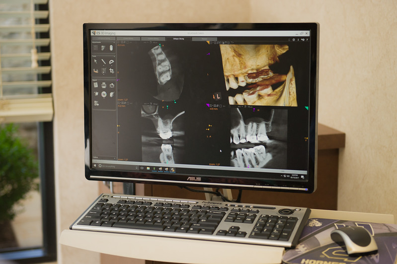 Amarillo Endodontics-13.jpg