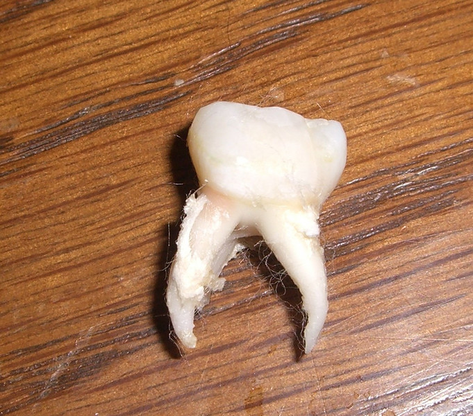 Nice picture, eh.  :)  This is Kimber's first tooth (baby) to be pulled.  She got an abcess under it and it had to come out.  Poor thing will have a hole in her mouth for a few years until the permanent one comes in.