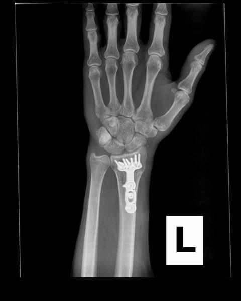 Scott Wrist 1.jpg