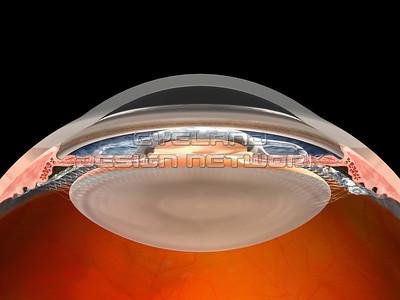 Iris clip lens