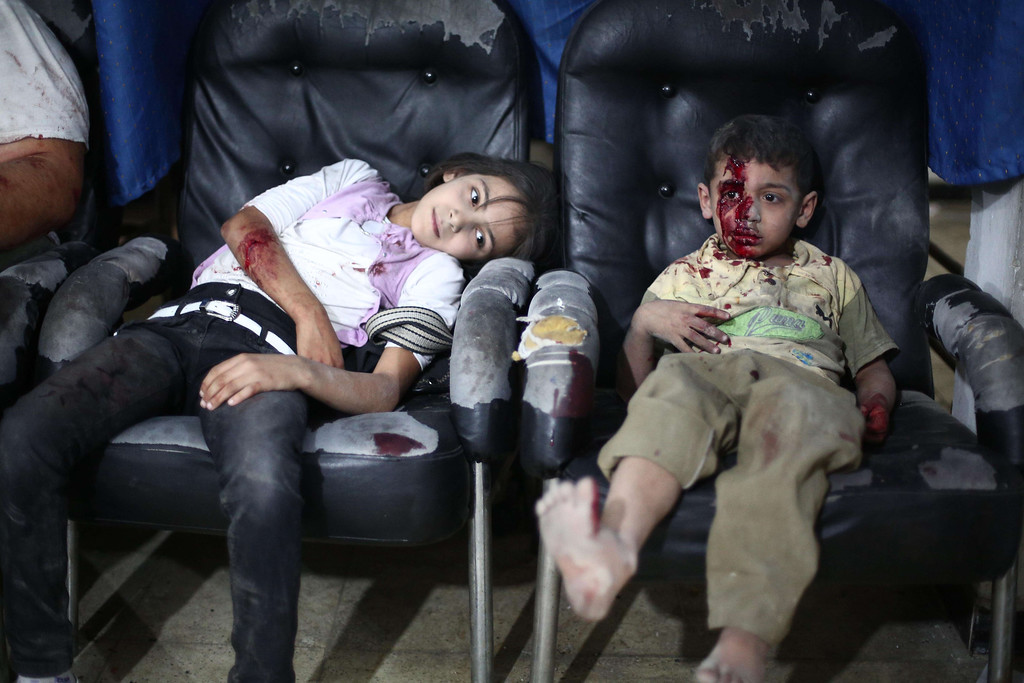 . Injured children sit at a makeshift hospital in the besieged rebel bastion of Douma, northeast of the Syrian capital Damascus, on September 24, 2014, following reported airstrikes by government forces. ABD DOUMANY/AFP/Getty Images