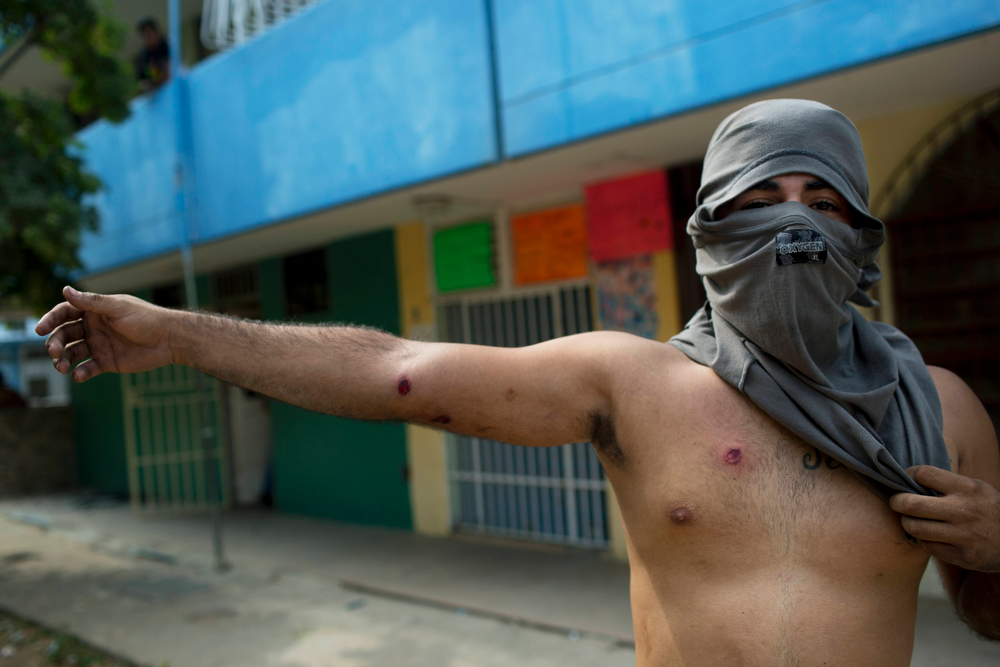 . A demonstrator shows injures caused by rubber bullets fired by the police during anti government protest in Valencia, Venezuela, Wednesday, Feb. 26, 2014. The protests began with students and were soon joined by others in several cities, upset over crime, economic problems and heavy-handed government response to the protests. (AP Photo/Rodrigo Abd)