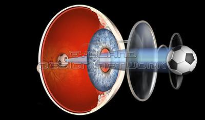 Refractive Errors - Glasses