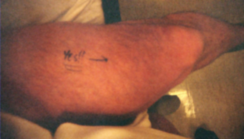 "Knee Surgery ""Menisectomy"""