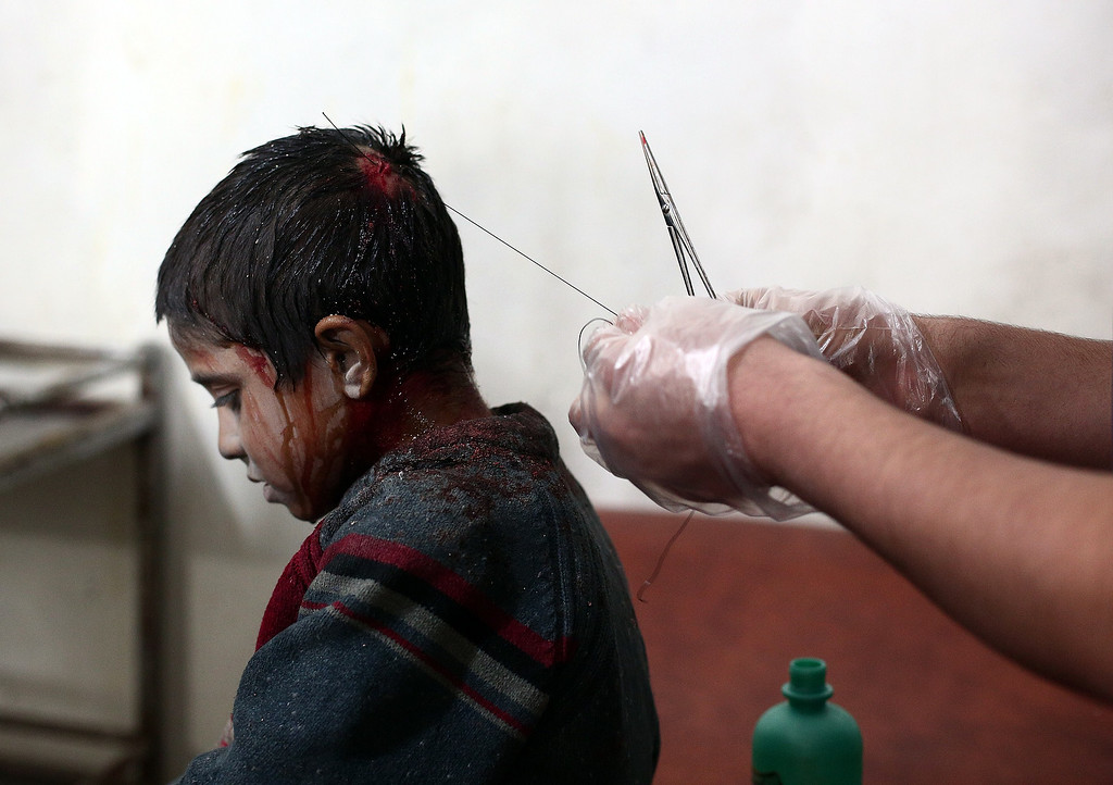 . A medic stitches the head of a wounded Syrian boy at a makeshift clinic after a mortar reportedly fired by Syrian government forces fell in the besieged rebel town of Douma, 13 kilometers (eight miles) northeast of Damascus, on November 11, 2014. Closing in on Douma, a town of 200,000 residents under siege since last year, the army has seized control of Mleiha and Adra and has set its sights on Jobar and Ain Tarma, all towns to the east of the capital. AFP PHOTO/ ABD DOUMANY/AFP/Getty Images