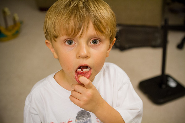 First lost tooth - September 1, 2011