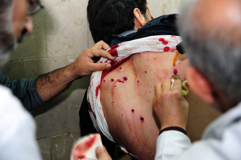 . In this photo released by the Syrian official news agency SANA, Syrian doctors treat an injured man who was wounded at the open-air cafeteria at Damascus University in the central Baramkeh district, in Damascus, Syria, Thursday, March 28, 2013. Mortar shells slammed into a cafeteria at Damascus University, killing at several people and wounding scores, according to state media and an official. It was the deadliest in a string of such attacks on President Bashar Assad\'s seat of power, state media and an official said. (AP Photo/SANA)
