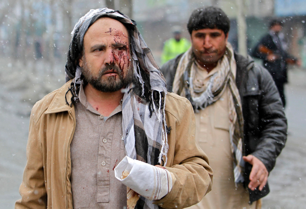 . Wounded men are seen at the site of car bomb attack in Kabul January 16, 2013. A car bomb exploded in front of the gates of the Afghan intelligence agency on Wednesday, Reuters witnesses said, near heavily barricaded government buildings and Western embassies. REUTERS/Omar Sobhani