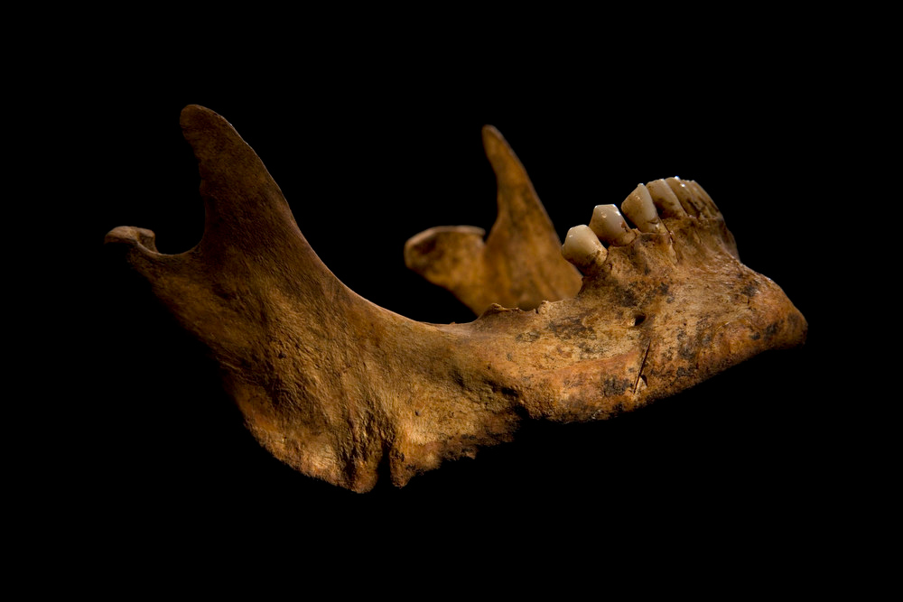 . The jaw bone of Richard III, which shows a cut mark (bottom right), is seen in this photograph provided by the University of Leicester and received in London on February 4, 2013. A skeleton with a cleaved skull and a curved spine entombed under a car park is that of Richard III, scientific tests confirmed, solving a 500-year-old mystery about the final resting place of the last English king to die in battle.  REUTERS/University of Leicester/Handout