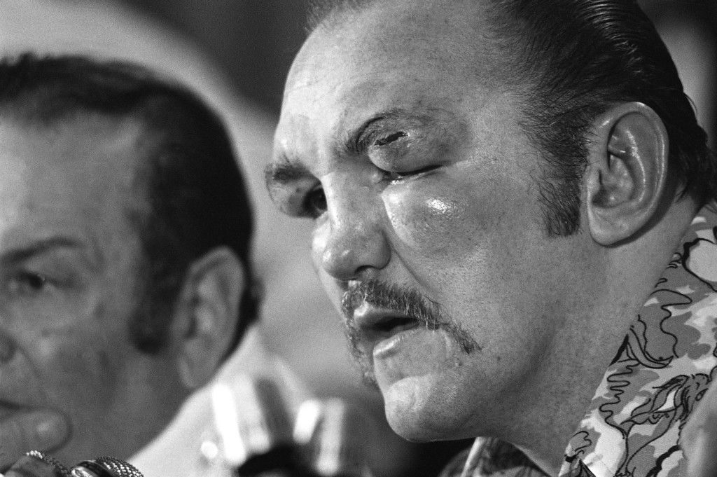 . Chuck Wepner?s eye is cut and puffed as he talks about his title bout with Muhammad Ali at press conference after the fight in the Cleveland Coliseum in Richfield, Ohio, Monday, March 24, 1975. Ali knocked out Wepner in the 15th round to retain his title. (AP Photo/Barry Thumma)