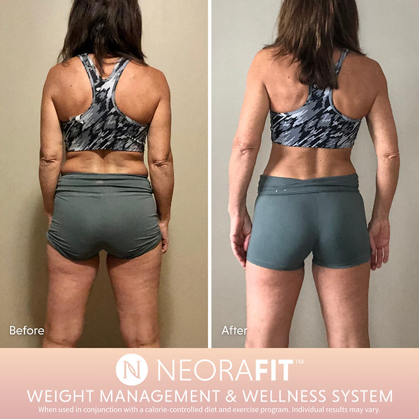 NeoraFit Real Results7.jpg