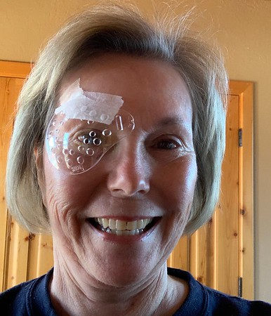 woman with an eye patch over eye.