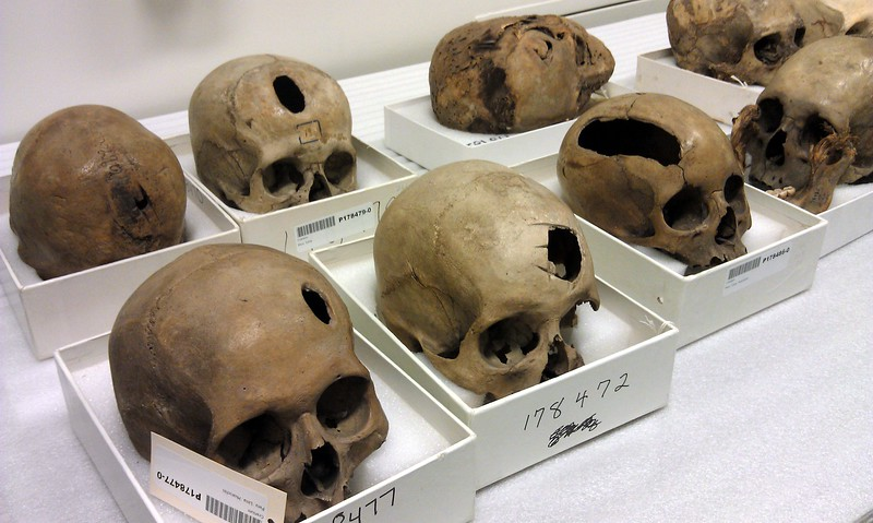 Patients from 1300-1400 CE, exhibiting trephinations