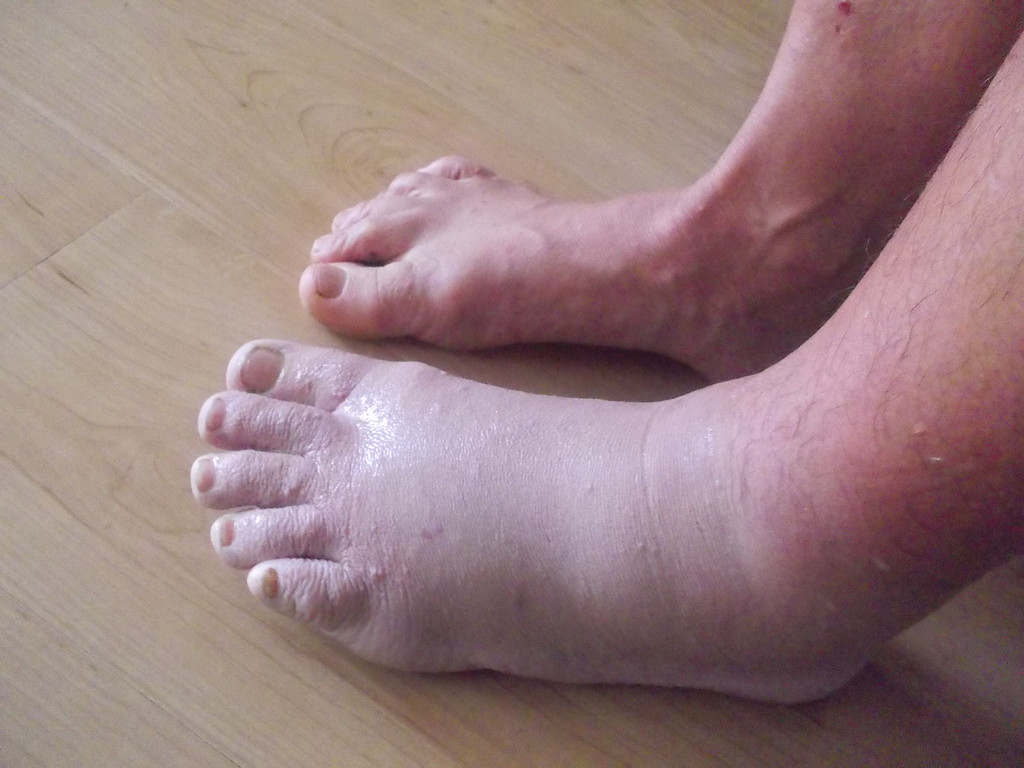 Snake bite - comparison of swollen foot to regular foot the first morning after poulticing