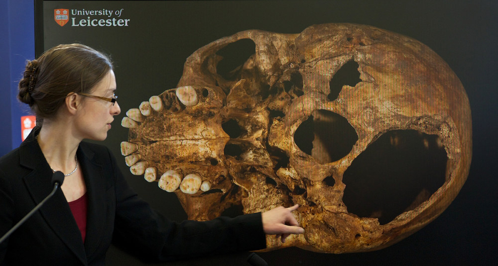 Description of . Dr Jo Appleby, a lecturer in bioarchaeology at Leicester University, points to an image of the skull of Britain\'s King Richard III, during a press conference at the university in central England, on February 4, 2013. A skeleton found under a car park in the English city of Leicester is that of King Richard III, widely regarded as one of history\'s most notorious villains, scientists confirmed Monday. AFP PHOTO/ANDREW COWIE/AFP/Getty Images