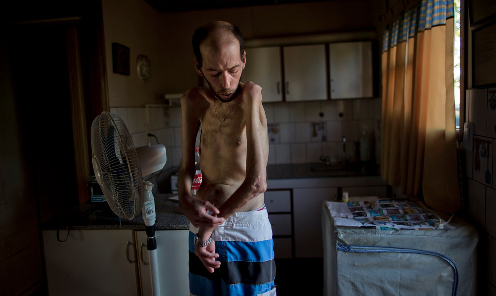 """. Former farmworker Fabian Tomasi, 47, shows the condition of his emaciated body as he stands inside his home in Basavilbaso, in Entre Rios province, Argentina on March 29, 2013. Tomasi\'s job was to keep the crop dusters flying by quickly filling their tanks but he says he was never trained to handle pesticides. Now he is near death from polyneuropathy. \""""I prepared millions of liters of poison without any kind of protection, no gloves, masks or special clothing. I didn\'t know anything. I only learned later what it did to me, after contacting scientists,\"""" he said. (AP Photo/Natacha Pisarenko)"""