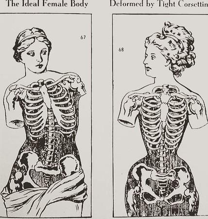 X-Ray corsets