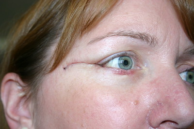 Elizabeth's Eye Surgery 3-2007