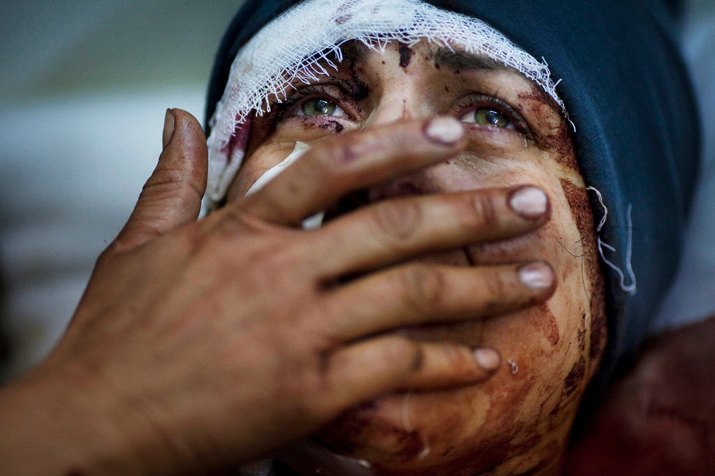 . In this March 10, 2012 file photo, Aida cries as she recovers from severe injuries after the Syrian Army shelled her house in Idlib, north Syria. Aida\'s husband and two of her children were killed after their home was shelled. (AP Photo/Rodrigo Abd, File)