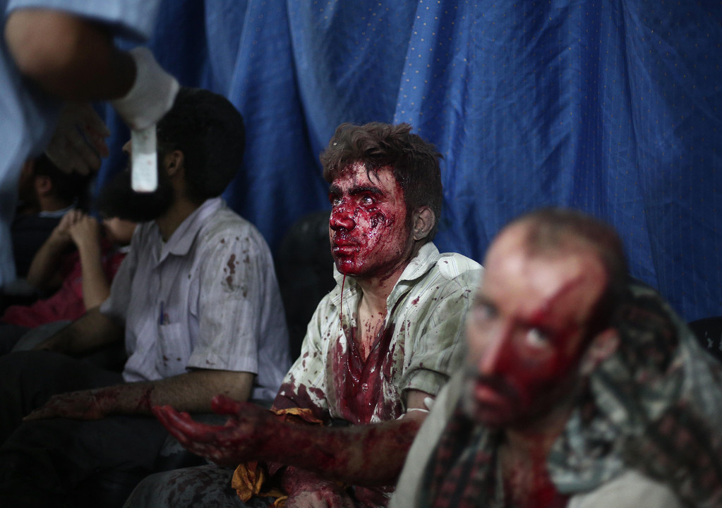 . Wounded Syrian men wait for treatment at a makeshift hospital in the rebel-held town of Douma near Damascus on September 9, 2014, after reported airstrikes by Syrian government forces that killed over 10  people and wounded dozens. Douma is a rebel bastion northeast of Damascus, which has been under suffocating army siege for more than a year. Syria\'s war has killed more than 170,000 people, and forced nearly half the population to flee their homes. AFP PHOTO/ABD DOUMANYABD DOUMANY/AFP/Getty Images