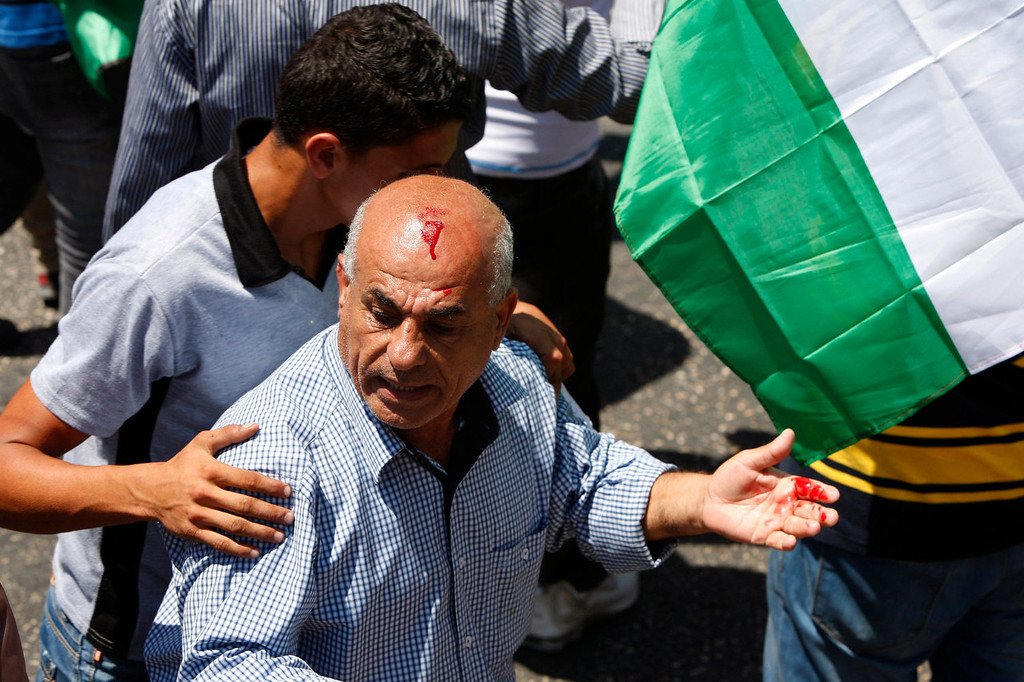 . A Palestinian reacts as he is injured when Palestinian policemen clashed with protesters in the West Bank city of Ramallah, Sunday, July 28, 2013. Some two hundred supporters of the Popular Front for the Liberation of Palestine protested against the resuming of the peace talks with Israel.   (AP Photo/Majdi Mohammed)