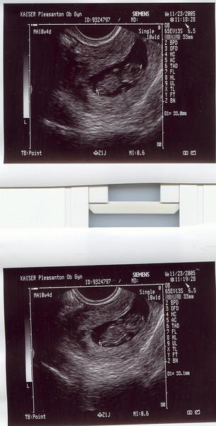 Jes's Ultrasound 11.23.05