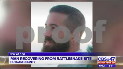 man-bit-on-tongue-while-trying-to-kiss-rattlesnake-neighbor-says