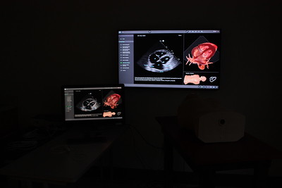 Ultrasound Institute (USI) Images and Videos